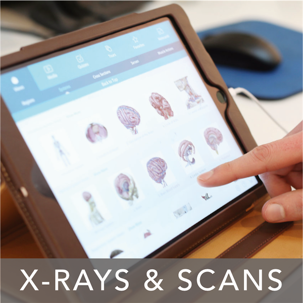 X-Rays and scans at Staines Chiropractic